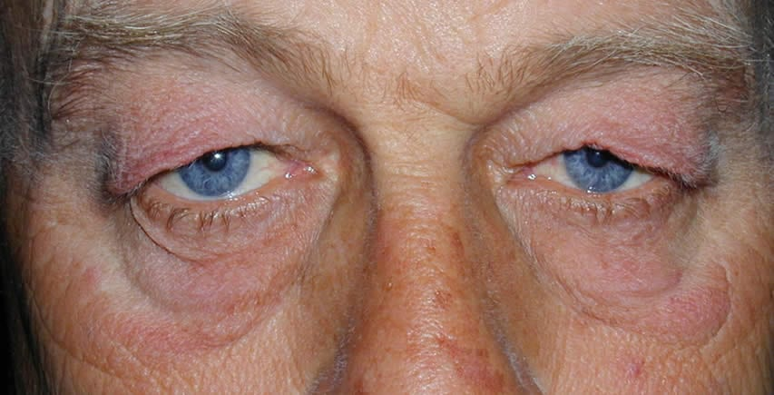 Blepharoplasty | Physicians Eye Clinic